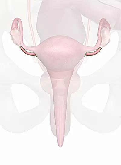 legamento ovarico