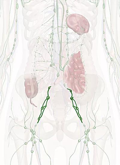 linfonodi iliaci