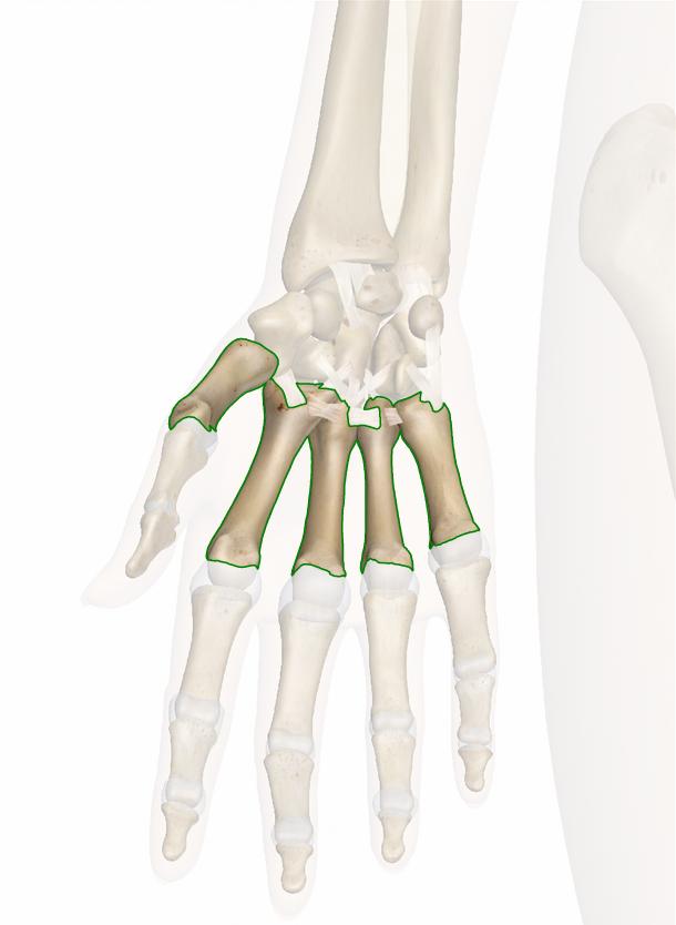 ossa del metacarpo