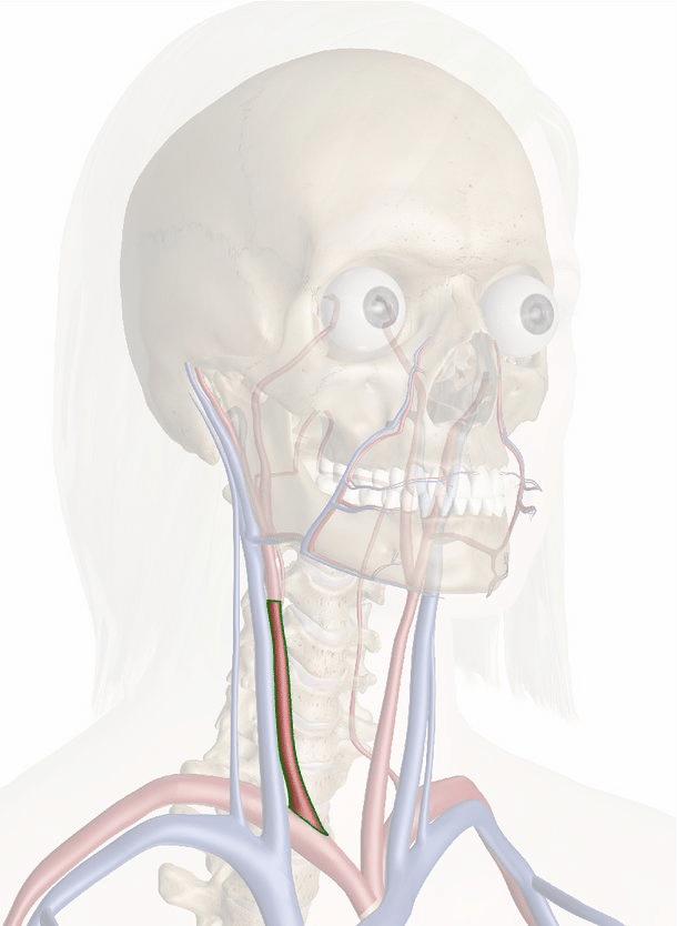 arteria carotide comune destra