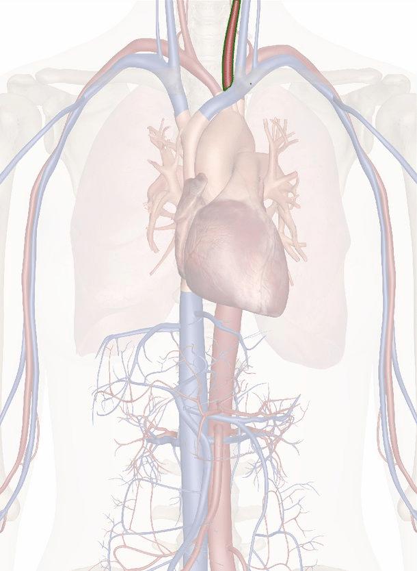 arteria carotide comune sinistra