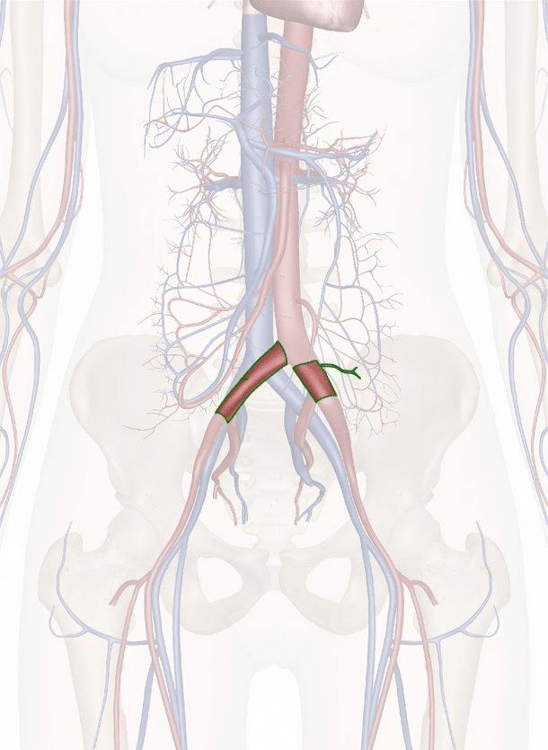arteria iliaca comune