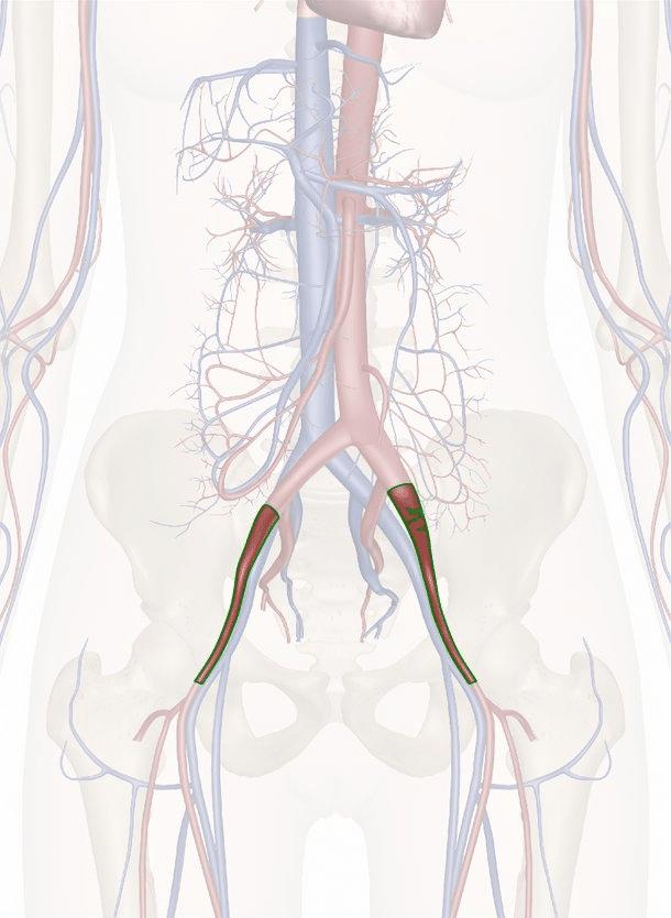 arteria iliaca esterna