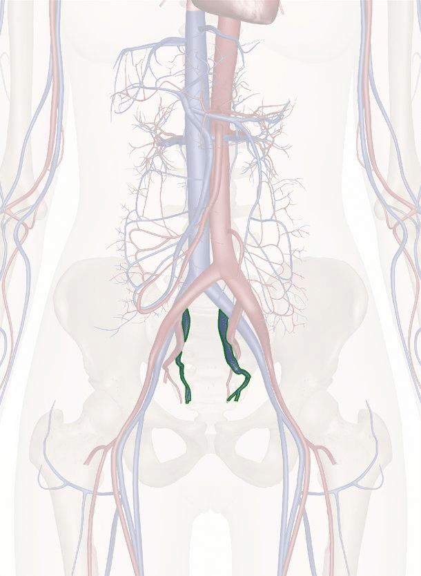 vene iliache interne
