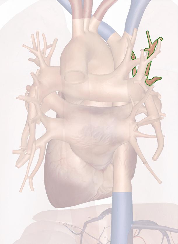 vena polmonare superiore destra