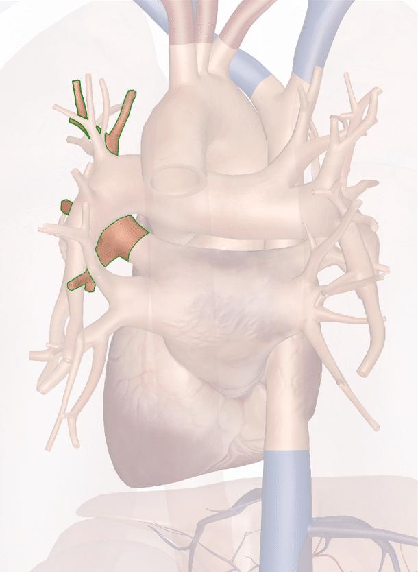 vena polmonare superiore sinistra